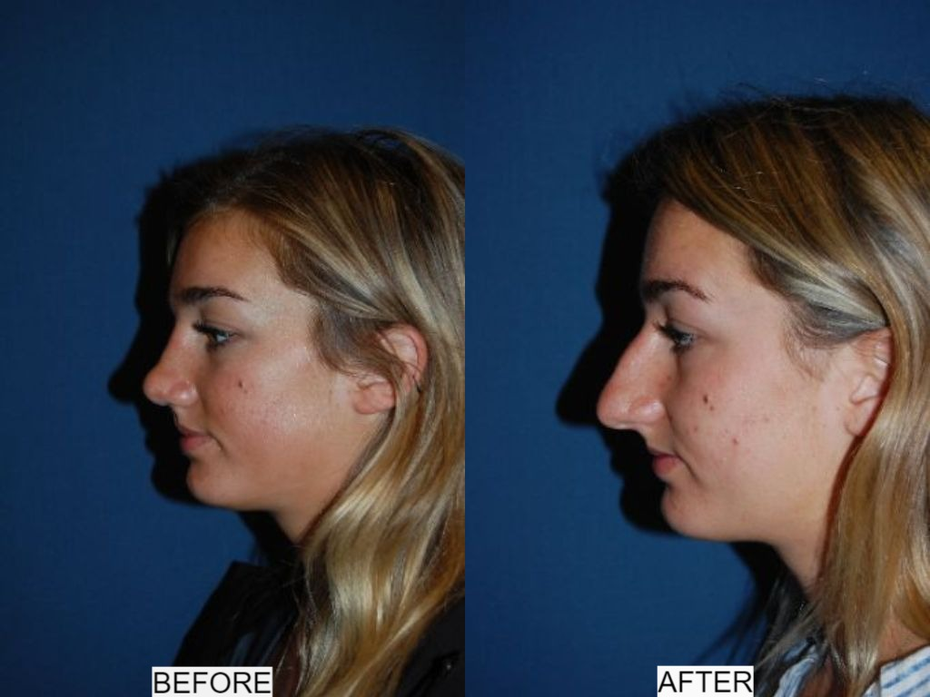 Rhinoplasty in Charlotte NC