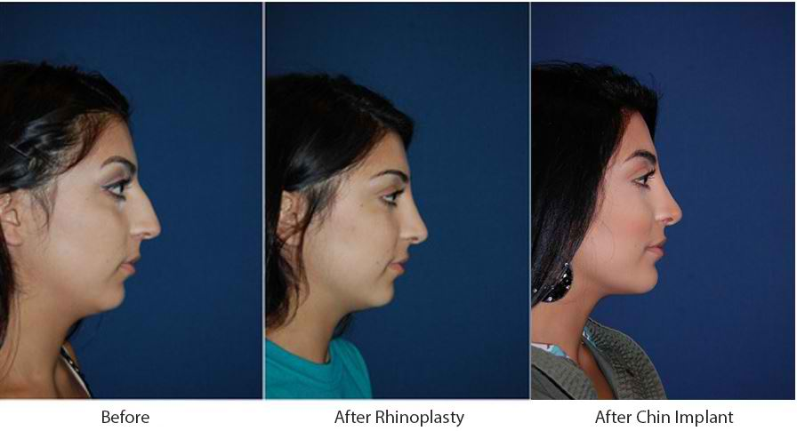 Facial plastic surgeon in Charlotte NC