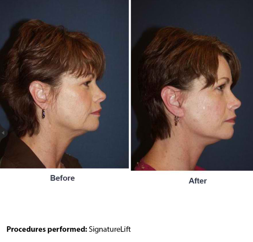 Facelift surgery in Charlotte NC