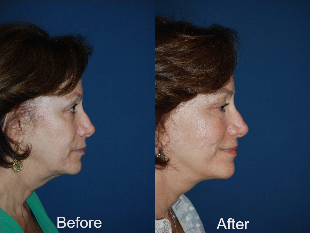 Facial plastic surgery in Charlotte NC