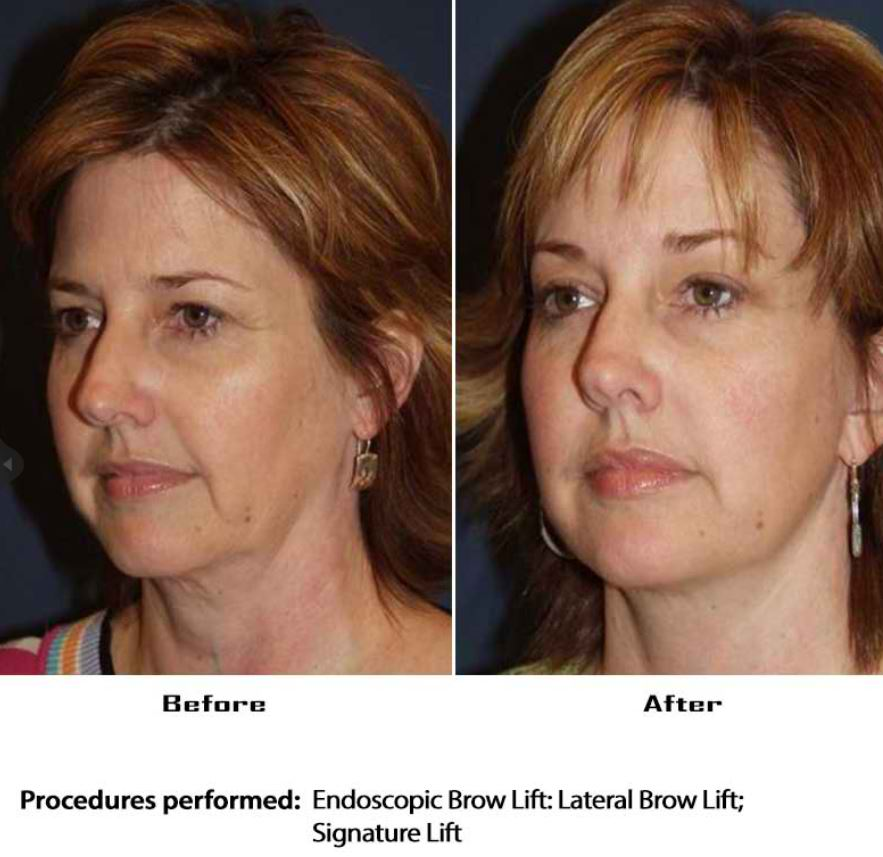 Facelift specialist