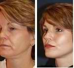 Only Faces- Top Charlotte Cosmetic Surgeon with Dr. Sean Freeman
