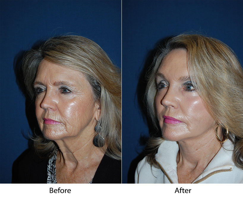 Top facelift surgeon