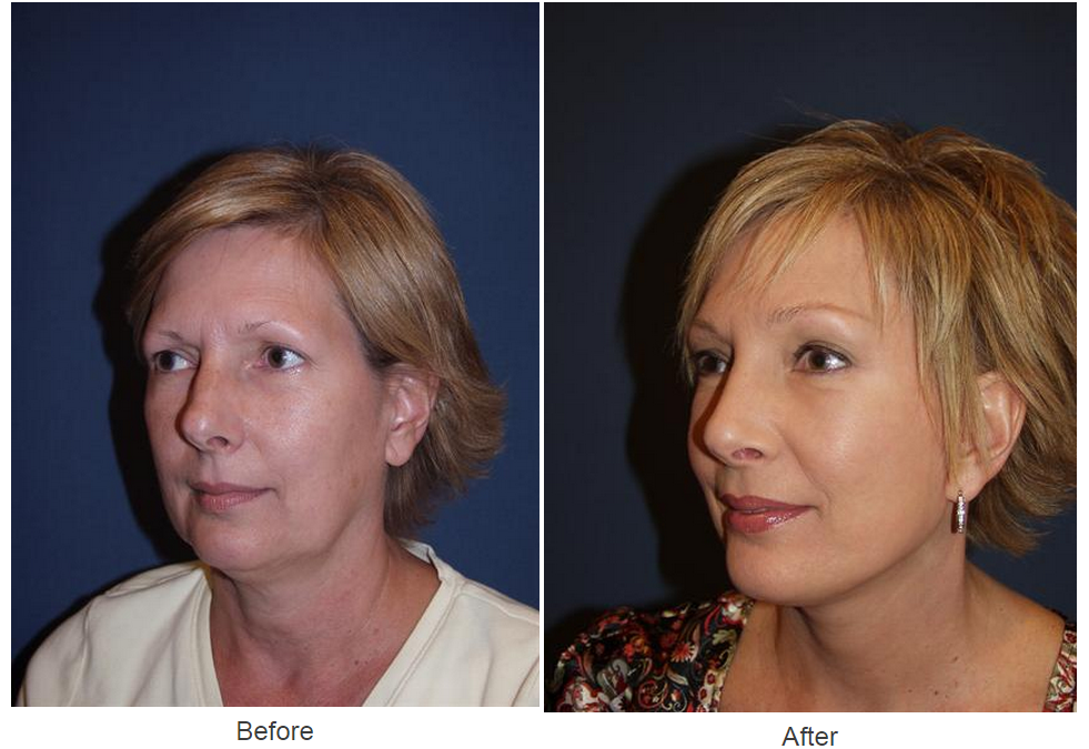 Facelift surgery by Dr. Sean Freeman of Only Faces in Charlotte NC