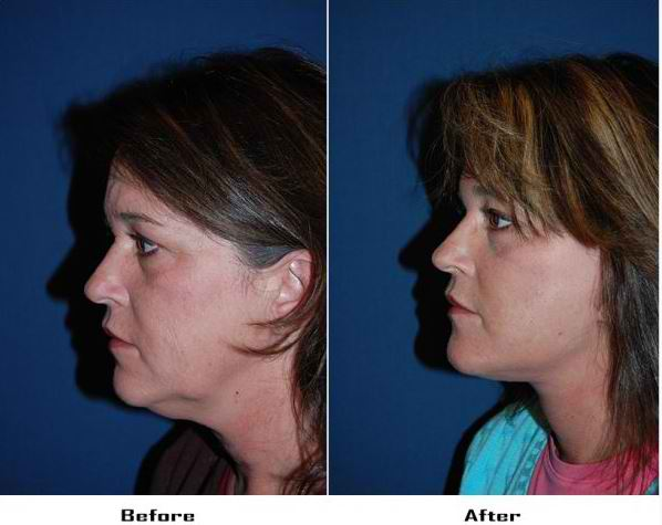 A deep plane facelift specialist in Charlotte NC discusses facelift surgery