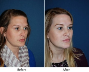 Rhinoplasty in Charlotte