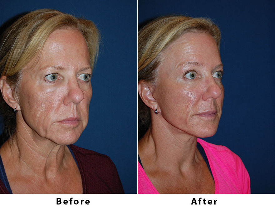 Patient 6204: 54 year old female - Dr. Freeman's makeovers, Endoscopic brow lift, ¾ brow lift, deep plane minituck, SOOF lift and full face CO2 resurfacing