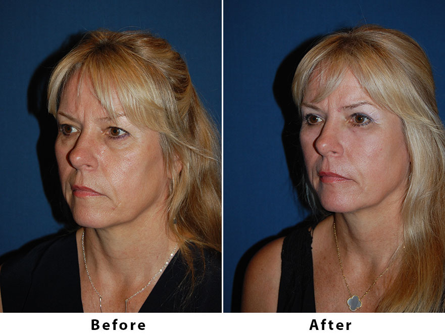 Patient 6271: 53 year old female - SOOF lift and a conservative (at patients request) upper lid blepharoplasty