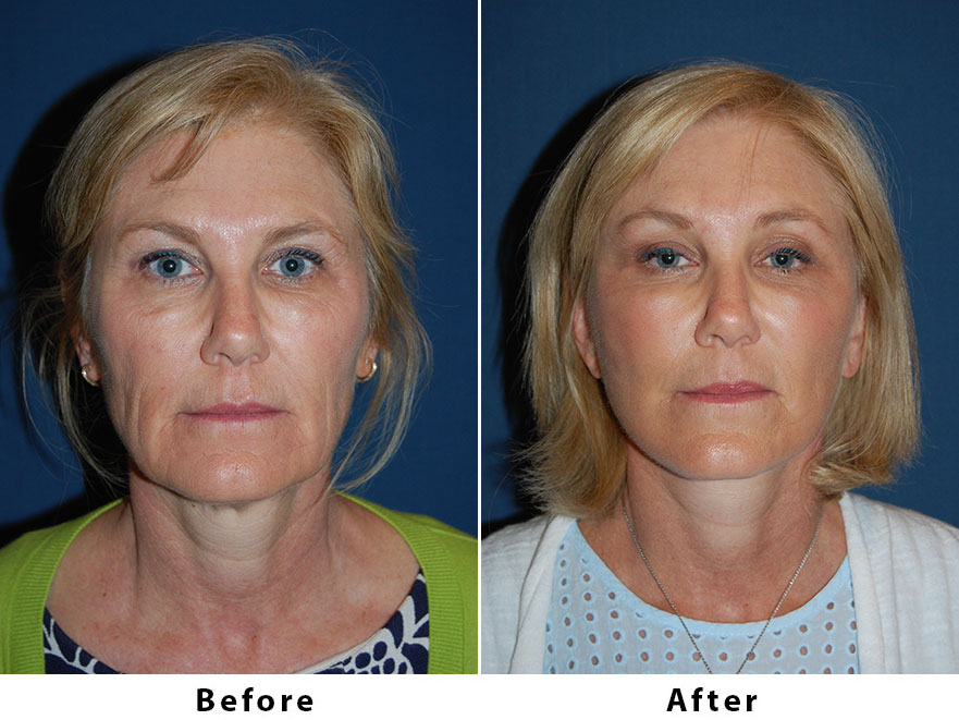 Patient 6328: 58 year old female - Dr. Freeman's makeovers, Brow lift, asymmetric brow lift (3/4 left and lateral R), SOOF, deep plane minituck.