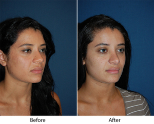 Best Charlotte Nc Rhinoplasty Surgeon Dr Sean Freeman Of Only Faces Changes Your Nose While He Harmonizes And Balances The Entire Face