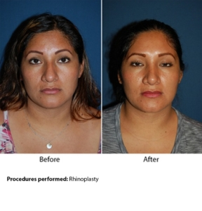 Best rhinoplasty surgeon in Charlotte NC