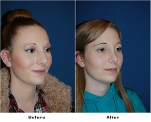 Best teen rhinoplasty in Charlotte, NC