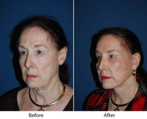 Brow lift in Charlotte, NC