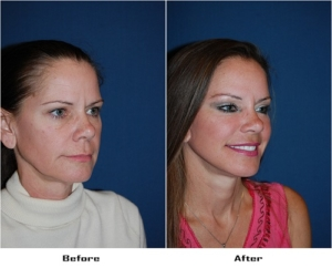 Cosmetic surgery in Charlotte
