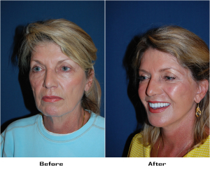 Deep Plane Face Lift or Facial Plastic Surgery in Charlotte, NC
