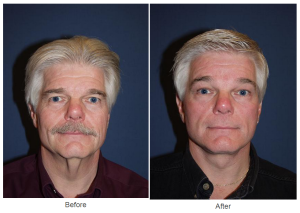 Facelift results to a patient