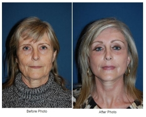 Eyelid Surgery or Eye lift in Charlotte, NC