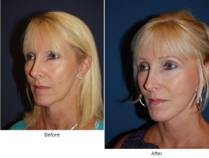 Facial Implants - Charlotte, NC