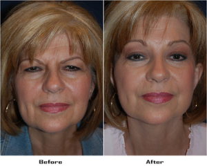 Full Brow Lift- Dr. Sean Freeman, Charlotte