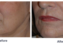 Dr. Freeman's Liquid Face Lift