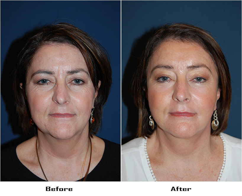 Ask a cosmetic surgeon about eye lift