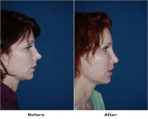 Nose job surgeon in Charlotte NC