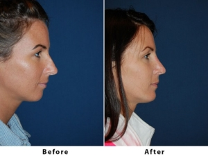 Nose job surgery in Charlotte NC
