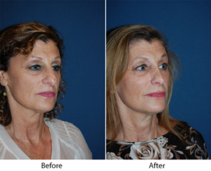 Revision rhinoplasty in Charlotte
