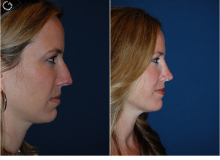 Dr. Freeman's Rhinoplasty Before and After photos
