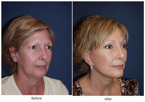 Rhinoplasty - Dr Freeman Makeover