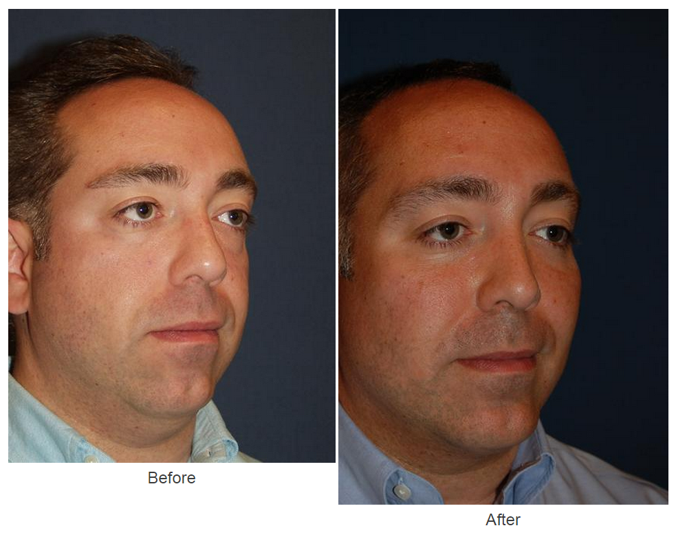 SOOF lift blepharoplasty