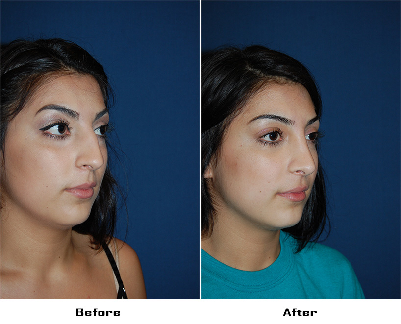 Teen rhinoplasty surgery