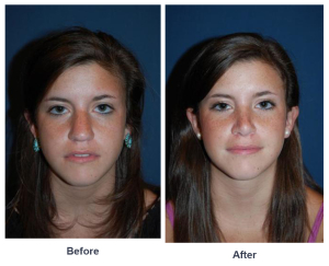 Teen rhinoplasty
