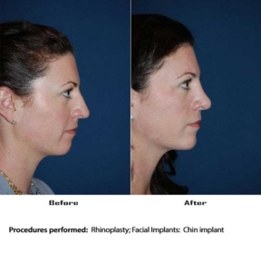 Top Charlotte rhinoplasty in Charlotte NC
