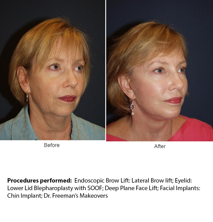 Endoscopic Brow Lift
