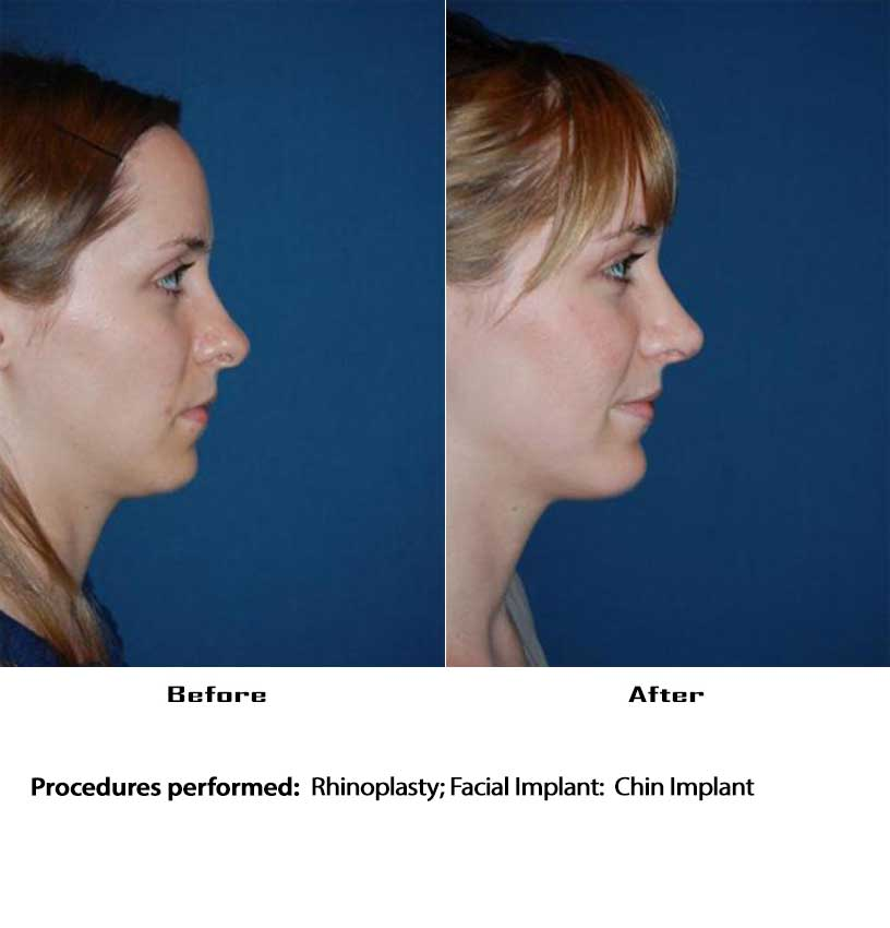 Chin Implant patient4430